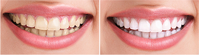 Teeth Whitening In Delhi, Inlays and onlays, Tooth bonding, Composite and porcelain veneers