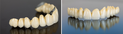 Inlays and onlays, Tooth bonding, Composite and porcelain veneers, Gum contouring, Crowns and bridges, Invisalign