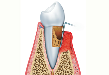 Root Canal Therapy, Root Canal Therapy In Delhi, Root Canal Treatment In Delhi